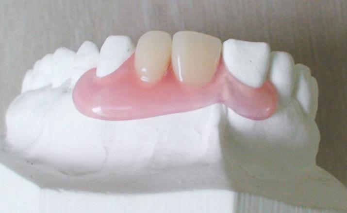 目立つ入れ歯を使いたくない場合